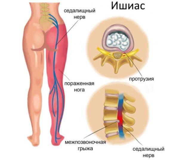 Очень часто появление грыжи в поясничном отделе является причиной ишиаса - воспаления седалищного нерва
