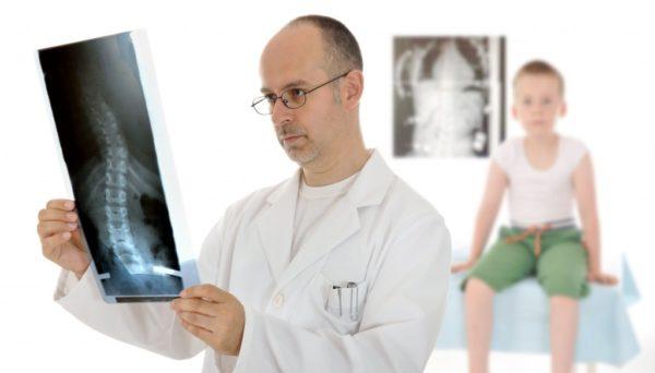 Методика лечения S-образного сколиоза подбирается индивидуально, в зависимости от тяжести искривления и наличия сопутствующих осложнений