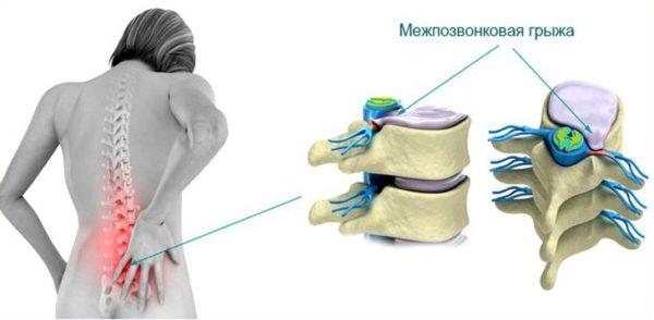Когда грыжа начинает сдавливать нервные корешки, возникают сильные боли в спине