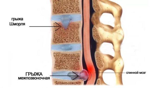 Магнитотерапия показана при грыжах позвоночника