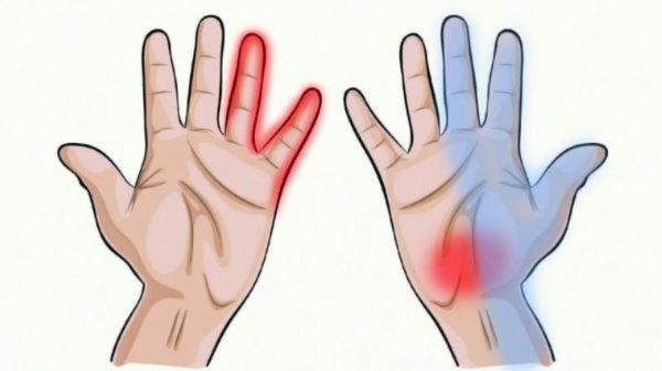При растяжении мышц в грудном отделе может наблюдаться нарушение чувствительности в руках