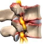 Что будет если не лечить остеохондроз грудного отдела позвоночника