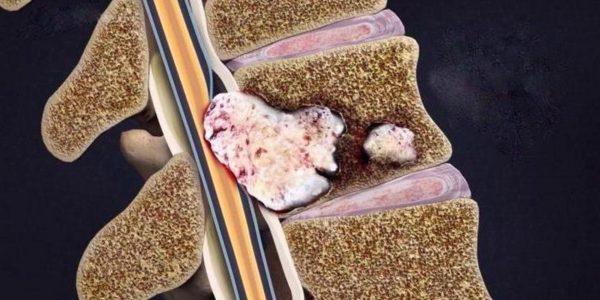 Развитие раковой опухоли в позвоночнике тоже вызывает увеличение и воспаление лимфатических узлов
