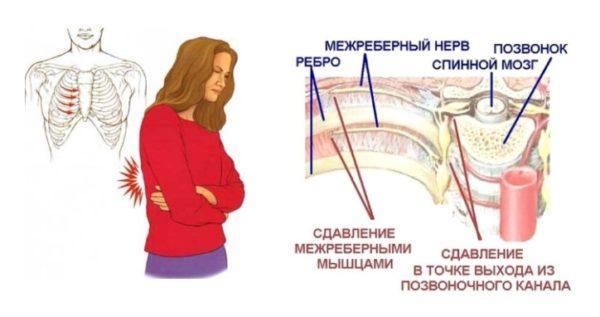 Невралгия в области ребер возникает при сдавливании нервных окончаний в местах их выхода из позвоночного столба