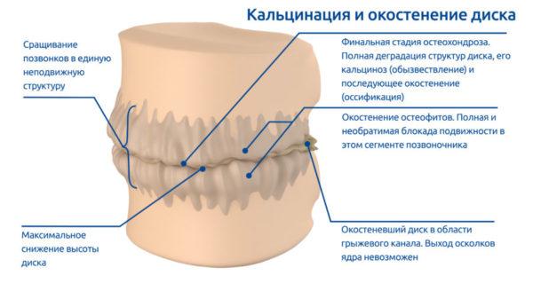 Отложение солей кальция на межпозвоночных дисках может привести к полному обездвиживанию позвоночника