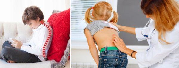 Нарушение осанки в детском возрасте может привести к развитию сколиоза