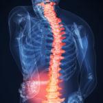 Показать лфк при остеохондрозе позвоночника