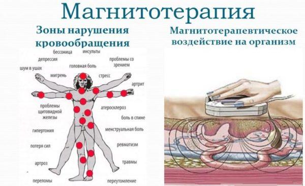 Магнитотерапия оказывает комплексное воздействие на организм
