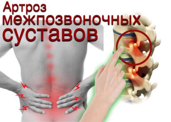 Артроз межпозвоночных суставов