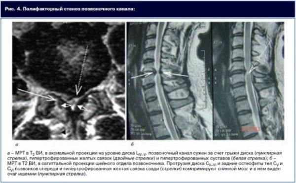 Атрофия связок на МРТ
