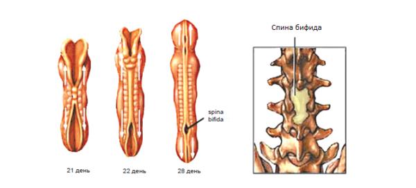 Этапы развития нервной трубки с патологией