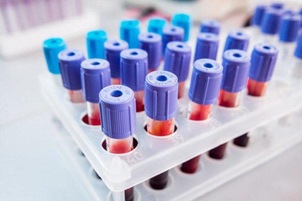 Биохимический анализ крови является простым и информативным методом первичной диагностики широкого спектра патологий