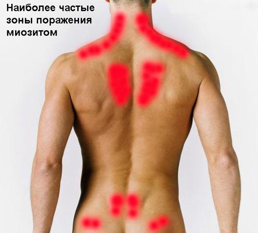 Зоны, которые миозит поражает чаще всего