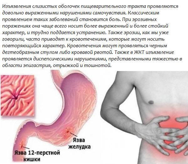 Изъязвление слизистой оболочки желудочно-кишечного тракта
