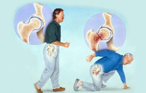 Из-за изменения структуры костей наблюдаются частые переломы