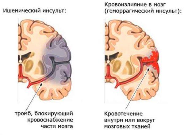 Ишемический инсульт, кровоизлияние в мозг