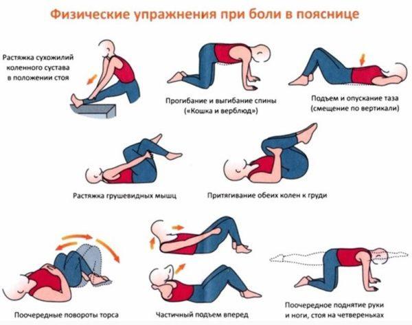 Лечебная физкультура - один из методов лечения радикулита