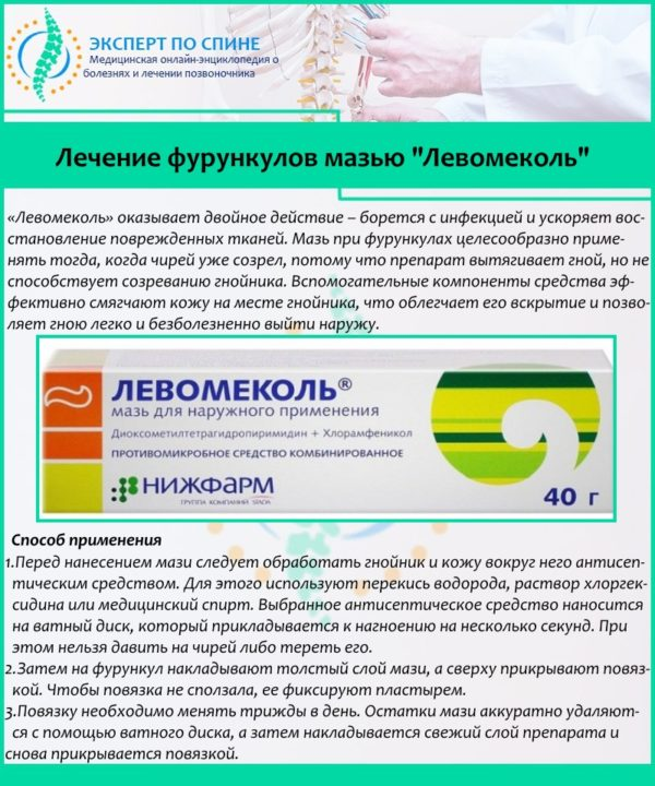 "Лечение фурункулов мазью ""Левомеколь"""