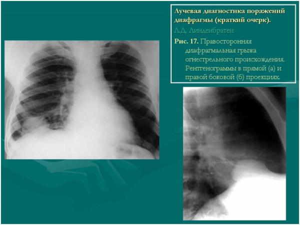Лучевая диагностика правосторонней диафрагмальной грыжи