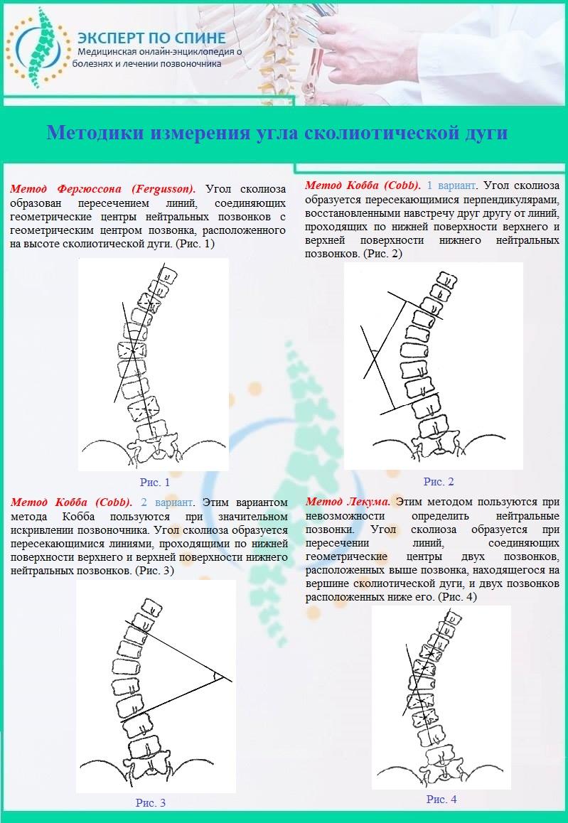 Методики измерения угла сколиотической дуги