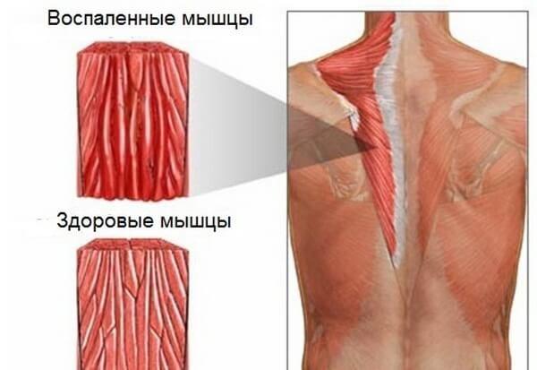 Миозит мышц спины изнутри