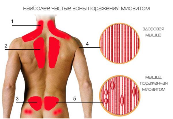 Мышца пораженная миозитом изнутри