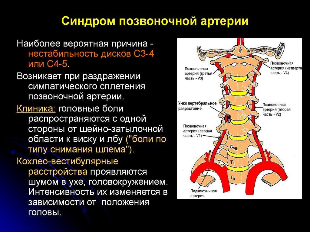 Нарушение работы вертебральных артерий при СПА может и не привести к ишемии мозга, но существует риск возникновения других патологий