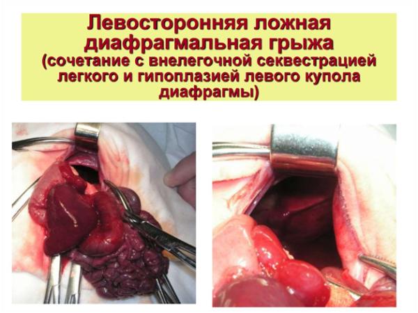 Операция по удалению левосторонней ложной диафрагмальной грыжи