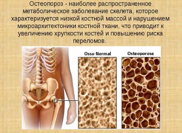 Остеопороз - особенности заболевания
