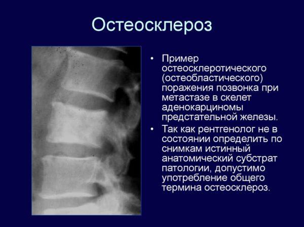Остеосклероз