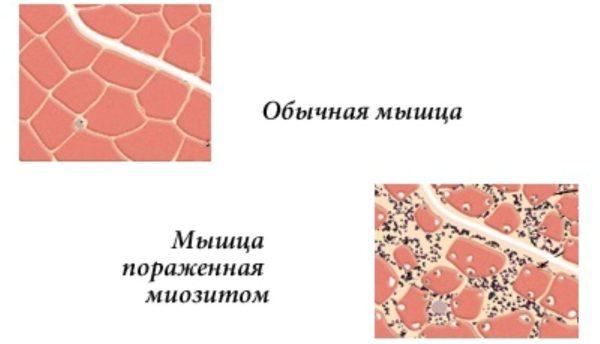 Отличия здоровой мышцы от мышцы пораженной миозитом