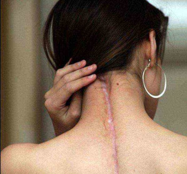 Показанием могут быть боли после операций на позвоночнике
