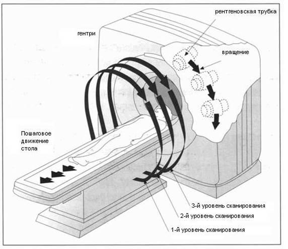 Принцип компьютерной томографии