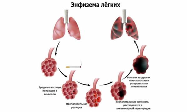Процесс образования эмфиземы легких