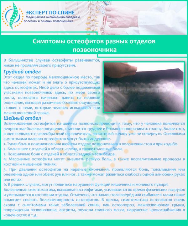 Симптомы остеофитов разных отделов позвоночника