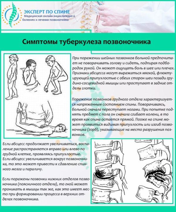 Симптомы туберкулеза позвоночника