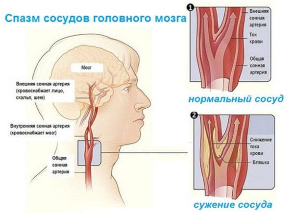 Спазм сосудов головного мозга