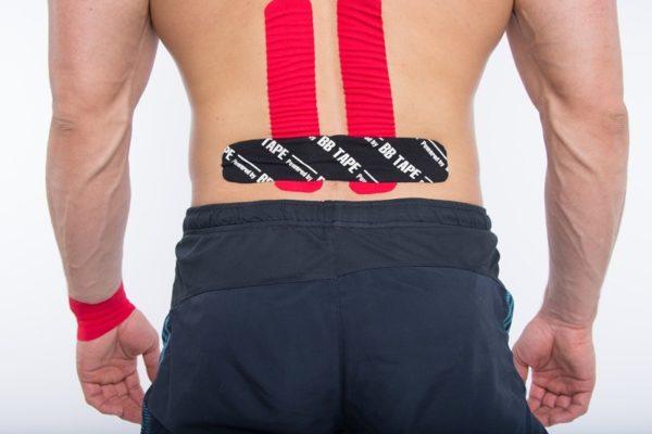 Тейпирование поясничного отдела спины