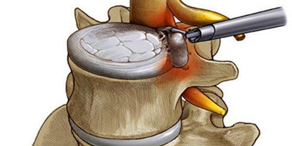 Удаление грыжи позвоночника с помощью эндоскопа