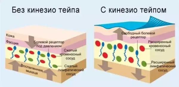 Улучшение кровообращения и движения лимфы под действием кинезиотейпа