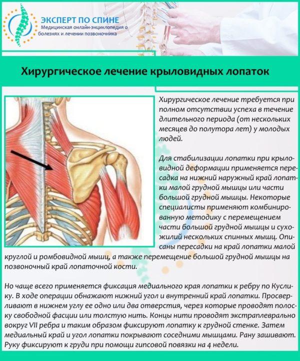 Хирургическое лечение крыловидных лопаток