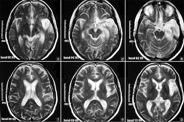 Энцефалопатия на МРТ