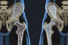 Обе патологии характеризуются уменьшением плотности костной массы, что потенциально опасно повышенной хрупкостью костей и склонностью к переломам