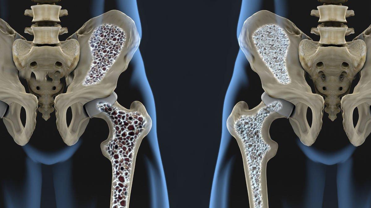 Остеопения и остеопороз: разница, методика лечения и профилактика