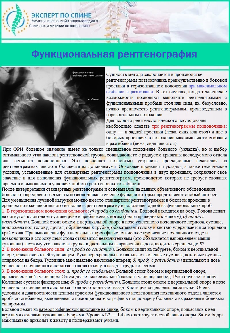 Функциональная рентгенография