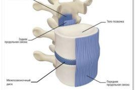 Стерты межпозвоночные диски: лечение