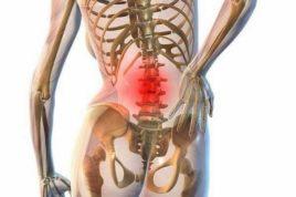 Воспаление остеохондроза