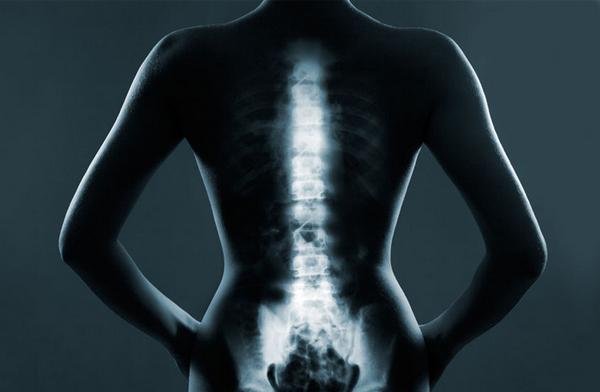 Распространенным остеохондрозом называют такую патологию, при которой поражается несколько участков одного отдела позвоночника или сразу несколько отделов