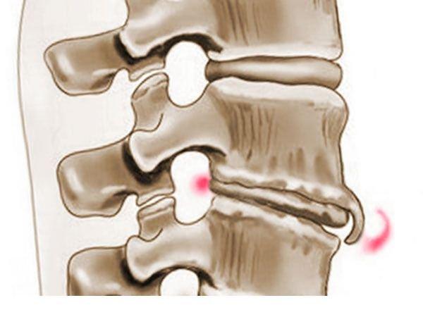 При спондилезе формируются остеофиты – костные наросты