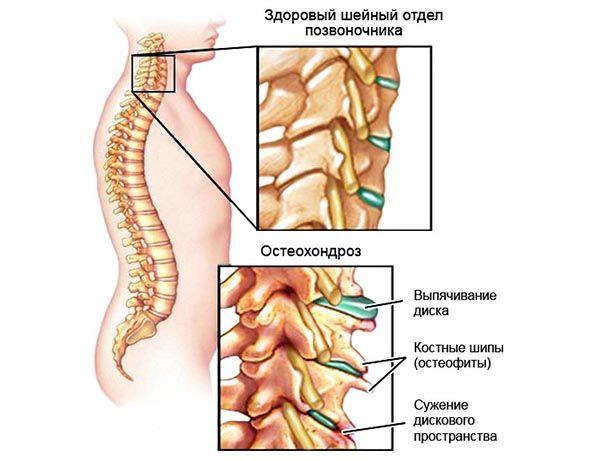 Выделяют несколько стадий развития шейного остеохондроза